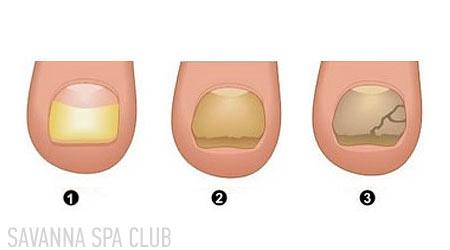 стадії грибку нігтів