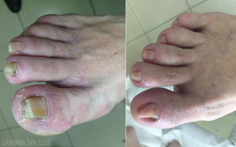 грибок нігтів до/після